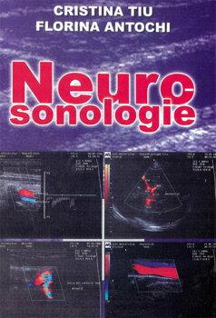 Neurosonologie/Cristina Tiu